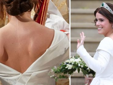 Princess Eugenie shared a candid photo of  her  scoliosis surgery